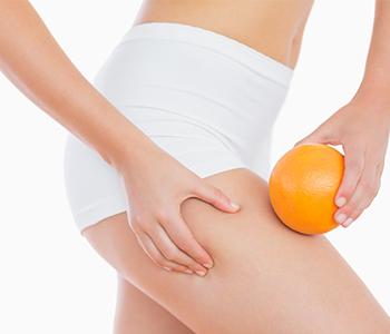 15-mitos-e-verdades-sobre-celulite-dermatologia-e-saude-350x300