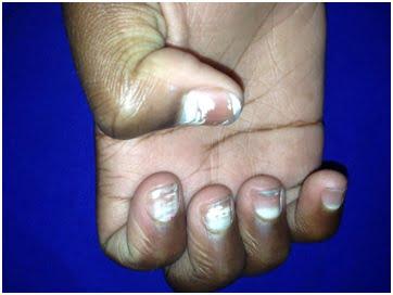 Manchas brancas nas unhas (1)