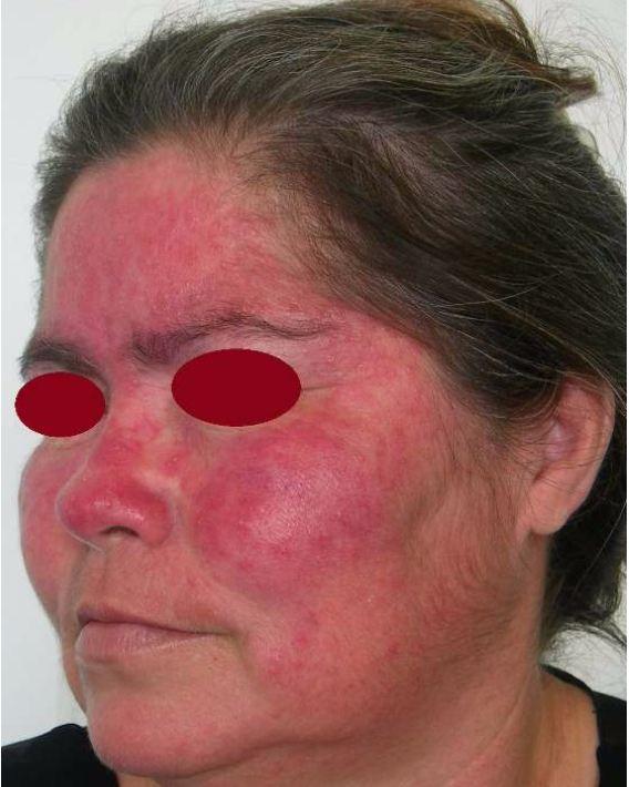 Vermelhidao-importante-erupcoes-parecem-acne