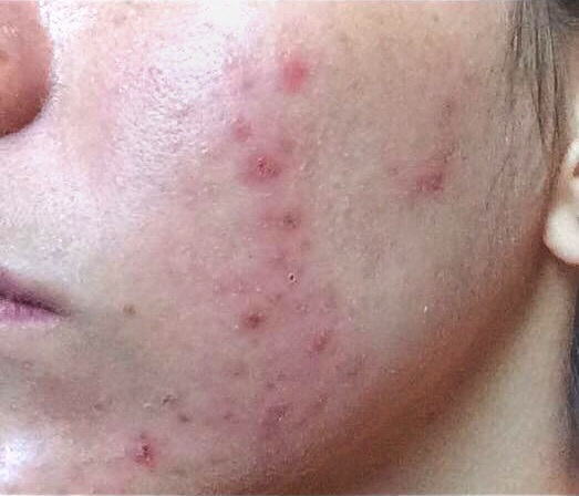 acne-na-vida-adulta-dermatologia-e-saude (1)