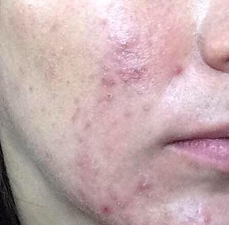 acne-na-vida-adulta-dermatologia-e-saude (2)