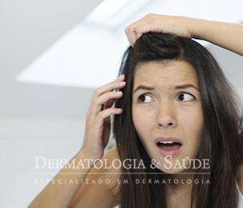 Alopecia Androgenética Feminina é o que equivale, na mulher, à calvície masculina
