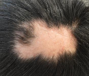 alopecia-areata-dermatologia-e-saude-350x300-01