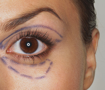 blefaroplastia-dermatologia-e-saude-350x300-1