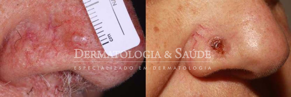Legenda figura: A- carcinoma basocelular em ponta nasal exibindo brilho perláceo e finas teleangiectasias. E carcinoma basocelular ulcerado, ferida que não cicatriza.