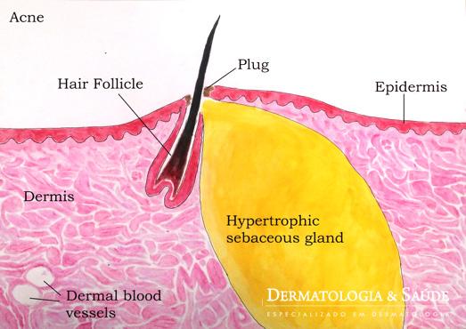 Acne em atividade, com glândula de tamanho aumentado, e formação de rolha (plug) em saída de folículo piloso