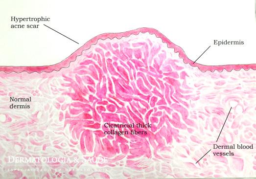 Cicatriz de acne elevada, pela grande formação de colágeno grosseiro durante a atividade da acne