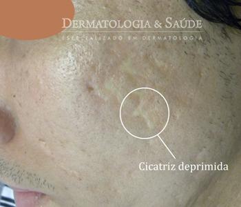 A acne frequentemente deixa cicatrizes de vários formatos, que podem ocorrer na face ou tronco