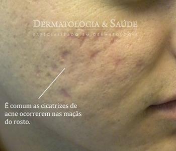 A maioria das cicatrizes de acne é deprimida (em forma de furo). Há vários tipos de tratamento para cicatrizes de acne