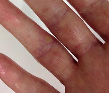 dermatite-de-maos-dermatologia-e-saude-350x300