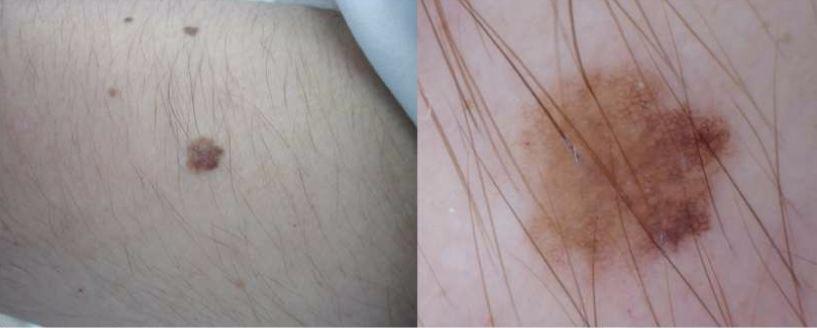 Sinal no antebraço analisado a olho nu (esquerda) e com dermatoscopia (direita)