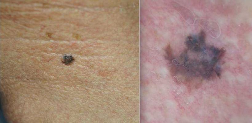 No lado esquerdo está um sinal no pescoço, enquanto na direita o mesmo sinal é analisado com dermatoscopia.