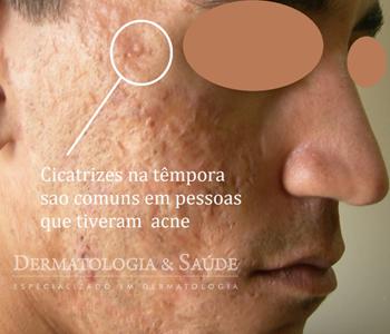 Em homens a acne costuma ser mais intensa e gerar cicatrizes mais grosseiras