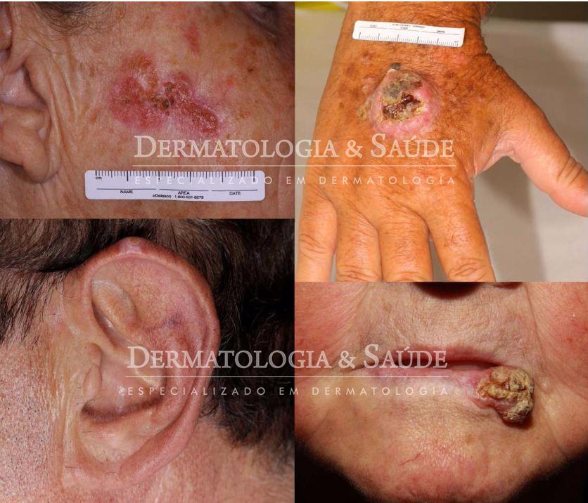 figura-carcinoma-espinocelular-orelha-boca-ferida-que-nao-cicatriza-cancer-de-pele-dermatologia-e-saude