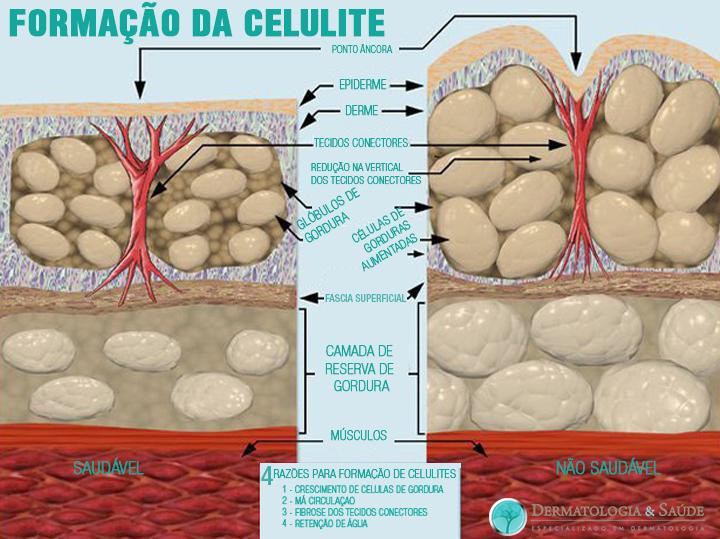formacao-da-celulite-dermatologia-e-saude