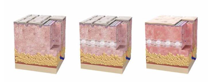 hidratacao-injetavel-na-pele-skinboosters