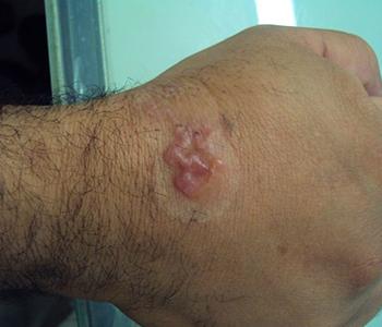 larva-migrans-dermatologia-e-saude-350x300