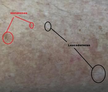 Leucodermias solares