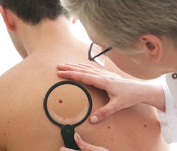 manchas-escuras-na-pele-dermatologia-e-saude-350x300