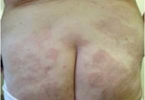 hanseniase multibacilar , manchas dormentes na região glútea de paciente do sexo feminino