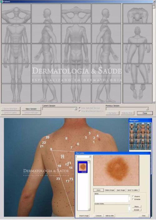 mapeamento-corporal-e-dermatoscopia-digital-dermatologia-e-saude-01