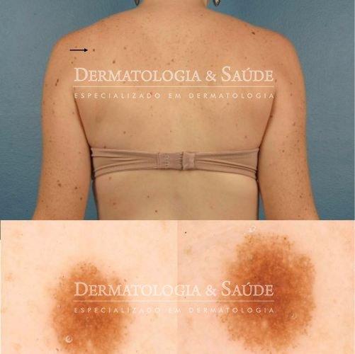 mapeamento-corporal-e-dermatoscopia-digital-dermatologia-e-saude-02