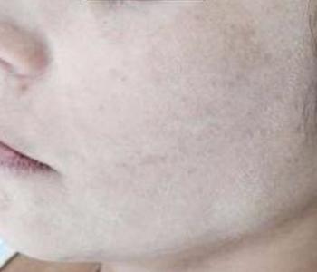 Manchas amarronzadas acometendo lateral da face