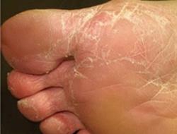 Tipo vésico-bolhosa da micose dos pés