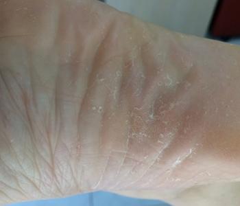 micose-dos-pes-dermatologia-e-saude-350x300