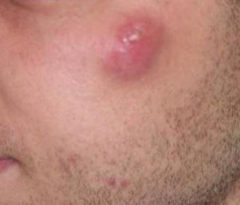 Cisto infectado em bochecha esquerda