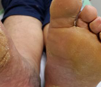 pes-ressecados-como-cuidar-dermatologia-e-saude-350x300-1