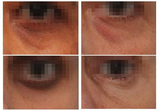 Exemplos de olheiras que se beneficiam com o preenchimento