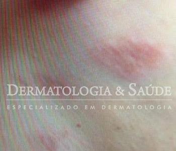 prurido-dermatologia-e-saude-350x300-10