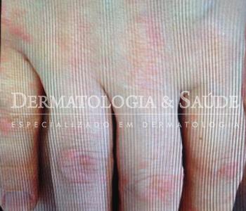 prurido-dermatologia-e-saude-350x300-9