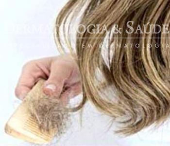 Queda de cabelos ao pentear