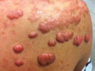 Queloide no ombro de adolescente, causado por acne
