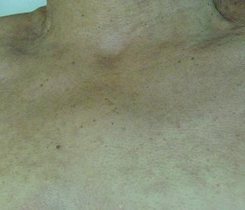 rejuvenescimento-do-colo-dermatologia-e-saude-01-350x300
