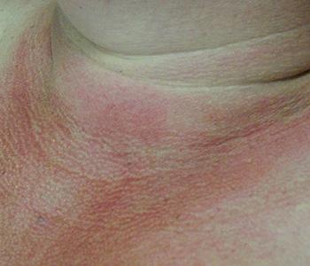 rejuvenescimento-do-colo-dermatologia-e-saude-02-350x300