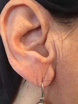 Flacidez do lobo da orelha