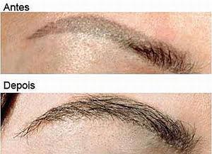 Transplante de sobrancelhas
