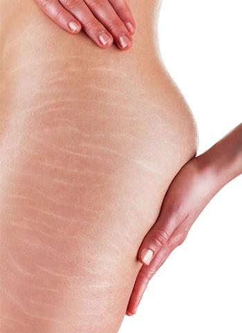 subcisao-dermatologia-e-saude