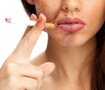 tabagismo-x-pele-dermatologia-e-saude-350x300