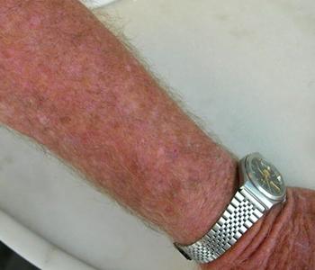 Múltiplas queratoses actínicas no antebraço e mãos-campo de cancerização