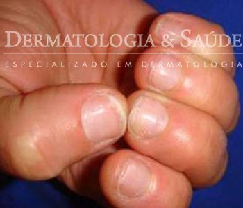 As unhas frágeis ou fracas são frequentes e ocorrem mais em mulheres