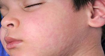 urticaria-dermatologia-e-saude