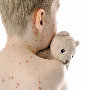 varicela-dermatologia-e-saude-350x300-01