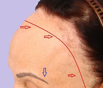 alopecia-fibrosante-fontral-dermatologia-e-saude-350x300