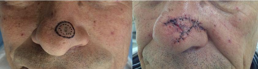Resultado pós cirurgia micrográfica de Mohs com dois estágios no nariz