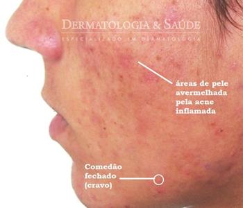 A isotretinoína é atualmente o medicamentos de escolha em casos mais intensos de acne. Para casos leves, como este, apenas medicamentos tópicos podem ser suficientes