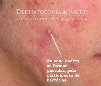 A isotretinoína mesmo tópica pode melhora lesões de acne leve